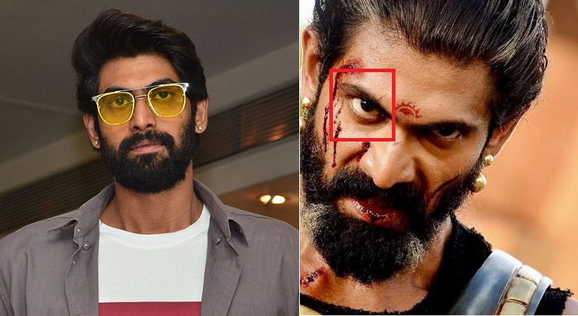 Rana Daggubati is blind in one eye